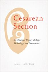 Cesarean Section - An American History of Risk, Technology, and Consequence (ISBN: 9781421425528)
