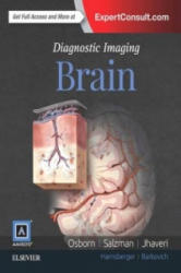 Diagnostic Imaging: Brain - A. G. OSBORN (ISBN: 9780323377546)