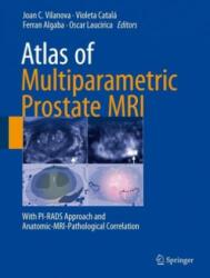 Atlas of Multiparametric Prostate MRI - With PI-RADS Approach and Anatomic-MRI-Pathological Correlation (ISBN: 9783319617855)