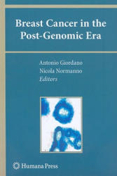 Breast Cancer in the Post-genomic Era (2009)