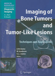 Imaging of Bone Tumors and Tumor-like Lesions - Techniques and Applications (2009)