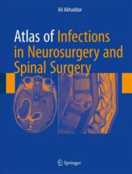 Atlas of Infections in Neurosurgery and Spinal Surgery (ISBN: 9783319600857)
