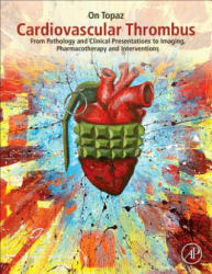 Cardiovascular Thrombus - From Pathology and Clinical Presentations to Imaging, Pharmacotherapy and Interventions (ISBN: 9780128126158)