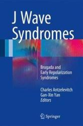J Wave Syndromes - Brugada and Early Repolarization Syndromes (ISBN: 9783319315768)