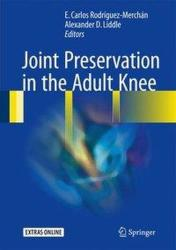 Joint Preservation in the Adult Knee (ISBN: 9783319418070)