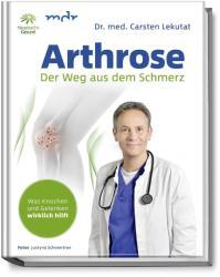Arthrose (ISBN: 9783954531554)