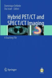 Hybrid PET/CT and SPECT/CT Imaging - A Teaching File (2011)