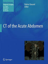 CT of the Acute Abdomen (2011)