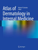 Atlas of Dermatology in Internal Medicine (2011)
