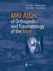 MRI Atlas of Orthopedics and Traumatology of the Knee - Peter Teller, Hermann König, Ulrich Weber, Peter Hertel (2012)
