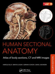 Human Sectional Anatomy - Atlas of Body Sections, CT and MRI Images (2015)