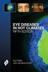 Eye Diseases in Hot Climates (2015)