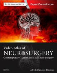 Video Atlas of Neurosurgery (2016)