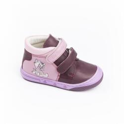 Asso bordó-rózsaszín, bőr kislány bokacipő, cica díszítéssel (20 - 24)